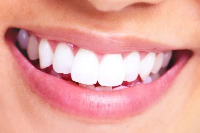 Folija za zube cijena