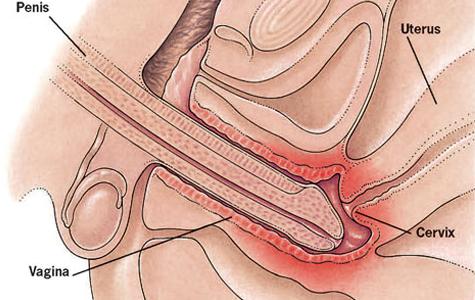 Bolan sexualni odnos nakon poroda